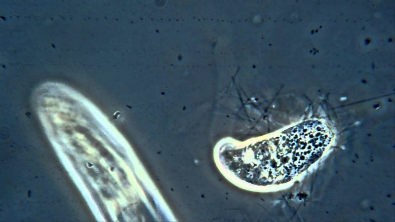 Don't Tase Me Bro Paranema Stunned By A Passing Paramecium