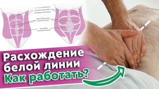 Проблемы «белой линии» живота / Как вылечить диастаз при помощи массажа?