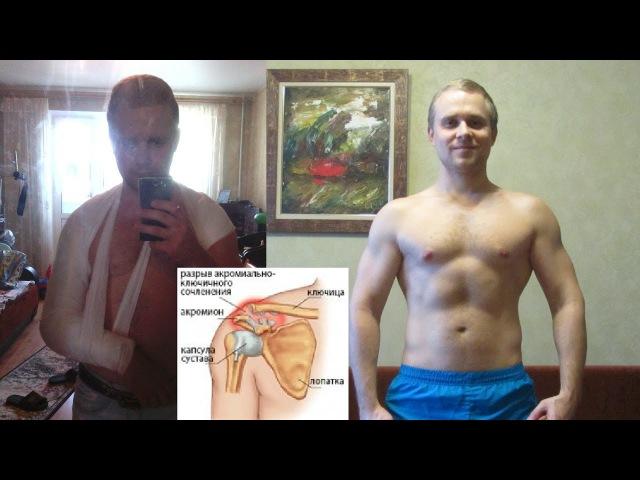 Травма плеча разрыв связок моя реабилитация за 6 месяцев BBB 36