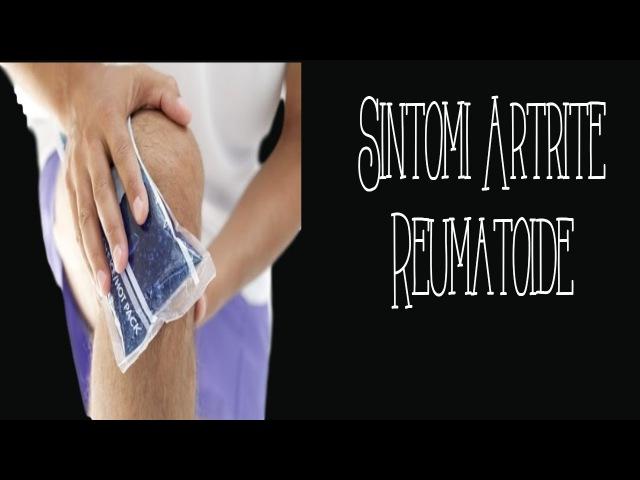 Sintomi Artrite Reumatoide Alimentazione Artrite Reumatoide Artrite Come Curarla Artrite Mano