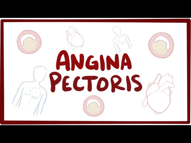 Angina pectoris (stable, unstable, prinzmetal, vasospastic) - symptoms pathology