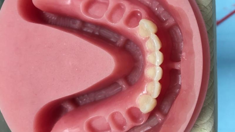 Full digital denture with 2 milling steps