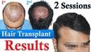 Hair Transplant with low Donor| Dr Suneet Soni | Medispa India | Best Hair Transplant Jaipur Delhi