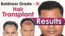 Why Hair Transplant Needs Artistic Hands along with Surgical Skills | Medispa INDIA | Dr Suneet