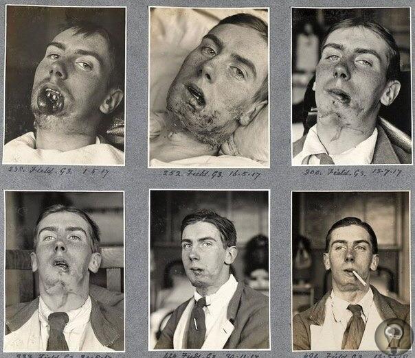 Новые лица для изуродованных солдат от отца пластической хирургии Гарольда Гиллиса заслуженно называют отцом современной пластической хирургии. Благодаря разработанной им методике пересадки кожи