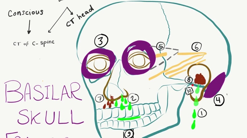 10 Signs and Symptoms Of Basilar Skull Fracture Basal Skull Fracture