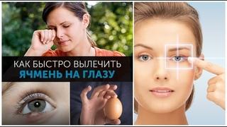 ✅«Плюнь мне в глаз!»: Но есть и лучший метод борьбы с ячменем, узнайте какой!