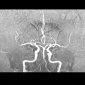 МРТ головного мозга + ангиография артерий головного мозга (фикс.цена)