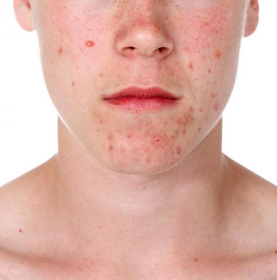 Некомедогенный макияж предназначен для предотвращения появления прыщей.