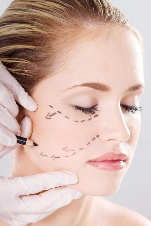 Женщина готовится получить имплантаты в щеку.