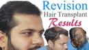 Full Revision Hair Transplant Video Facts Fiction Information by Dr Suneet Soni | MediSpa INDIA